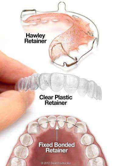 Dental Retainers - Newmarket Dentists - Davis Dental Care