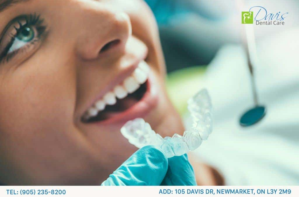Braces Vs Invisalign; Which is Better?