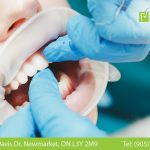 How are Teeth Cavities Formed?