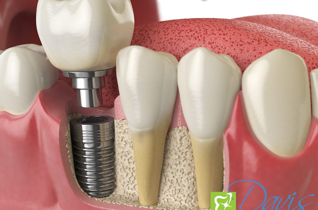 Why are Dental Implants the Best Option for Replacing Missing Teeth?