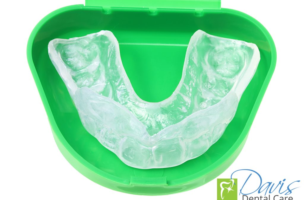 5 Good Reasons to Wear a Mouthguard