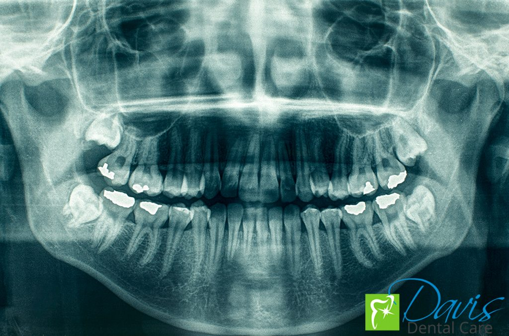 Dental X-rays: Are They Safe?
