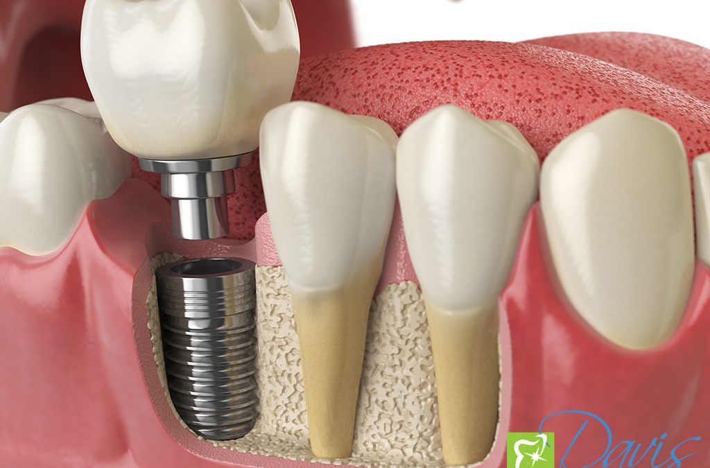 Feel Confident About Your Smile with Dental Implants