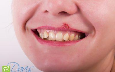 Xerostomia (Dry Mouth)