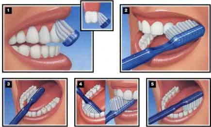 Proper Brushing & Flossing Techniques